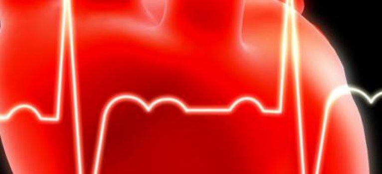 Fonduri suplimentare pentru programul de tratare a infarctului miocardic