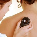 cabinet-dermatologie-dermatoscopie