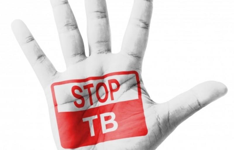 tuberculoza-800x513